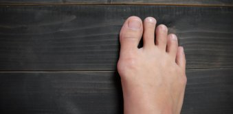 How to find a way to get rid of bunions naturally