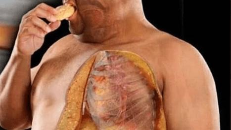 la historia de la obesidad en el mundo