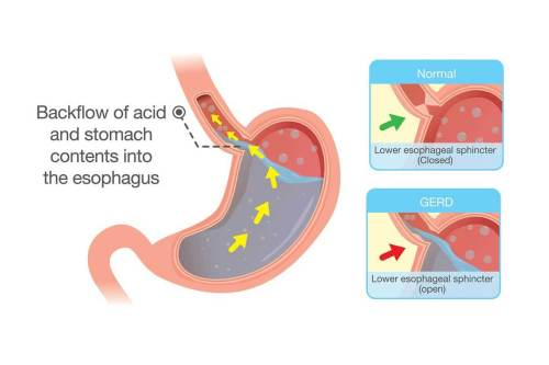small resolution of what is gerd gastroesophageal reflux disease gerd is the chronic occurrence of acid