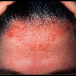 Washing Hair Every Other Day: Treatment options for people with psoriasis of the scalp
