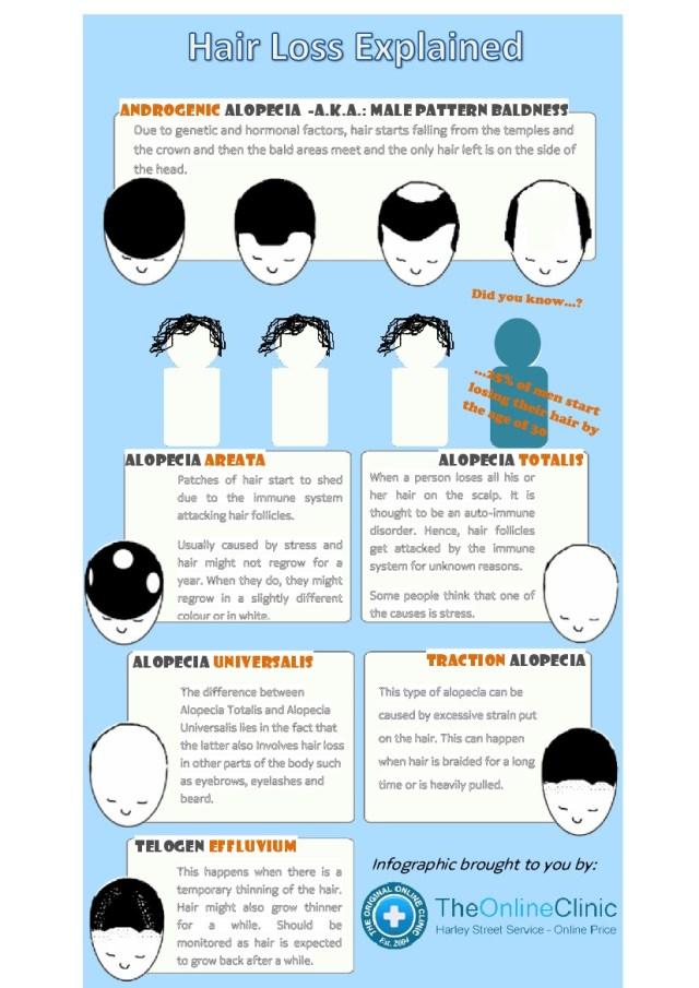 hair-loss-explained_52669c148d2961