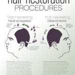 Hair Restoration Procedures