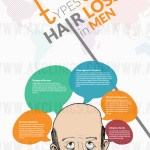 Type Of Hair Loss In Men