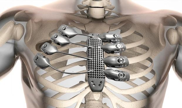 implantedecostilla