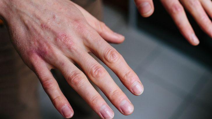 Sabañones y otros síndromes vasculares ocasionados por el frío