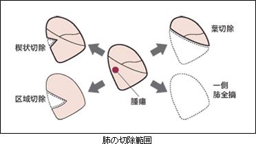 県立広島病院/肺がん