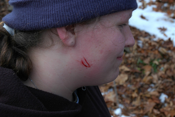 Kara got attacked by a bear