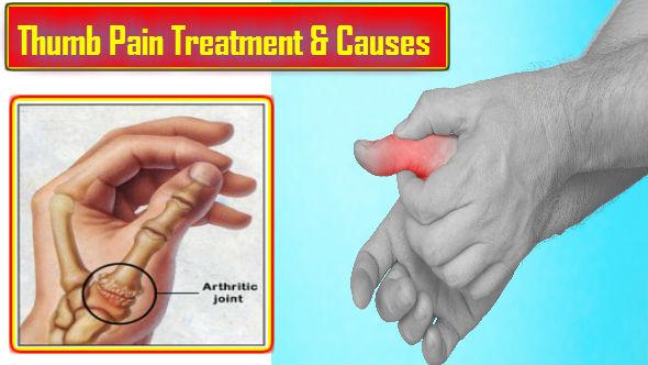 Thumb Pain: Janiye Anguthe ke Dard ka Treatment aur Causes