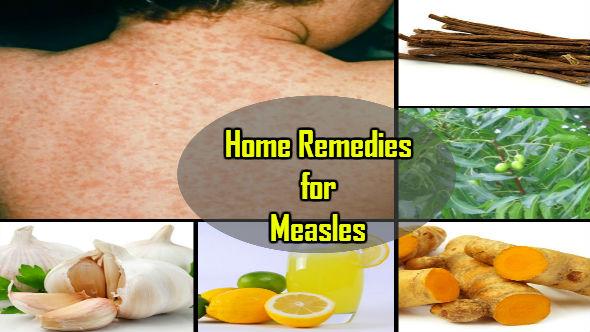 Home Remedy German Measles