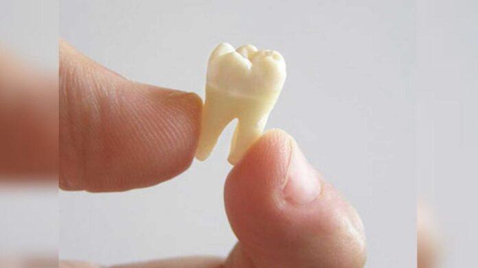 Зуб с что выпал кровью приснилось