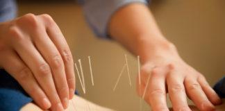 Медики объяснили, как иглоукалывание помогает людям худеть