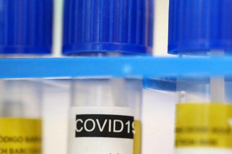 Названы пациенты с самым мощным иммунитетом к COVID-19
