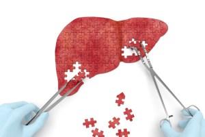 Cal/OSHA encourages reducing spread of hepatitis A