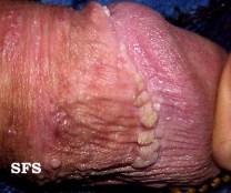 HPV (3)