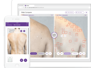AI skin mapping tech available to patients