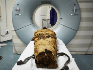 Leeds Teaching Hospitals tech helps reconstruct a mummy's vocal tract