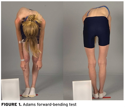 Adams foward-bending test to show signs of scoliosis