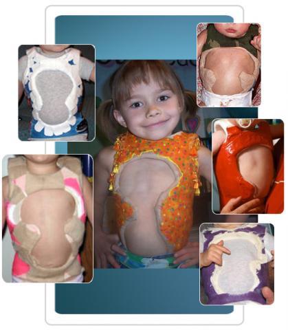 infantile scoliosis casting