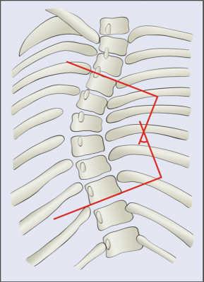 Cobb Angle Scoliosis