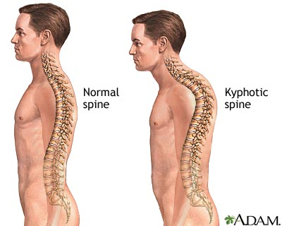 kyphoscoliosis