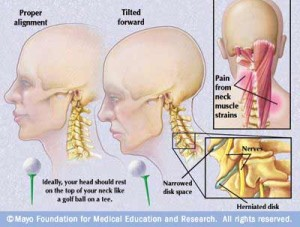 scoliosis forward head posture