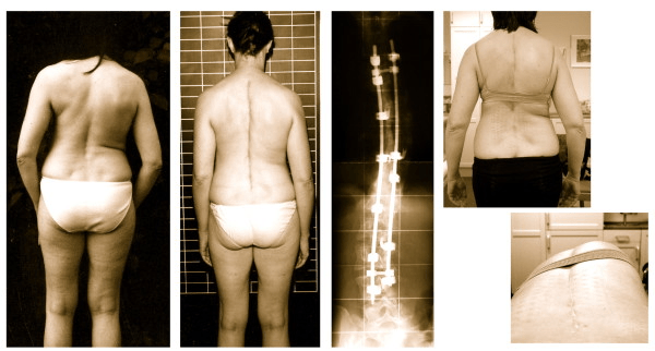 Scoliosis Surgery Outcomes and Cognitive Dissonance