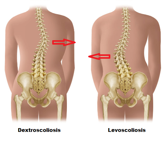 Types of Scoliosis - Hudson Valley Scoliosis