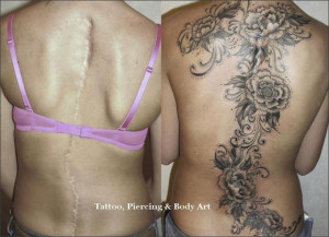 tatoo to cover up scoliosis scar