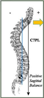 adult scoliosis sagittal balance