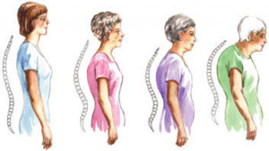 scoliosis in adult patients