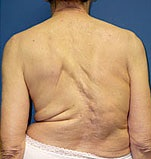 adult scoliosis symptoms
