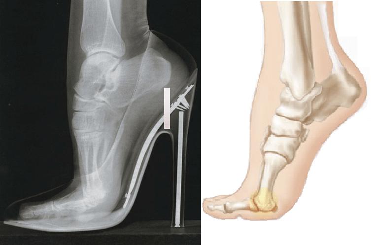 xray of foot in high heel
