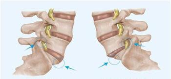 Degenerative Scoliosis: Lateral Listhesis, Spondylolisthesis