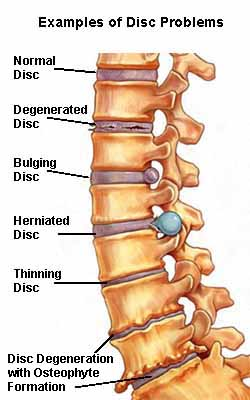 scoliosis disc problems