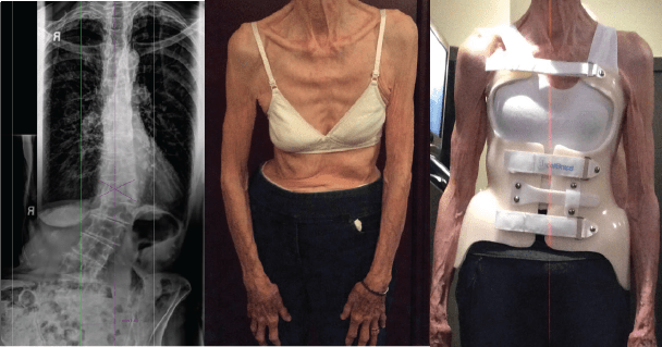 best scoliosis braces for adults