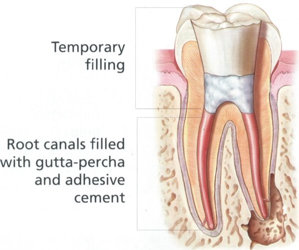 Endodontic Treatment / Root Canal Therapy