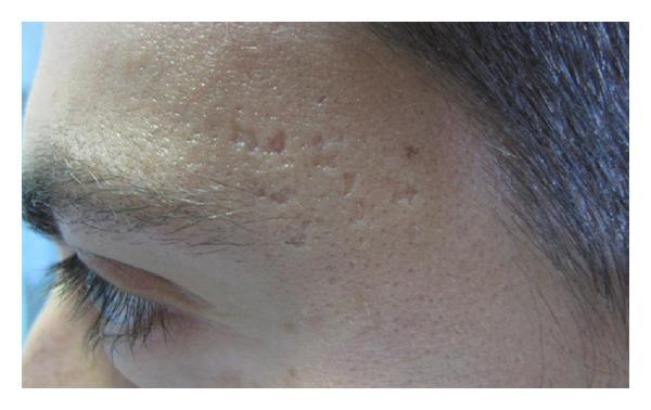 Boxcarlittekens na acne