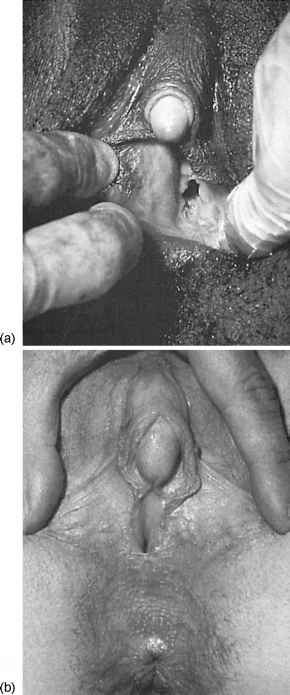 фото гениталий гермафродита
