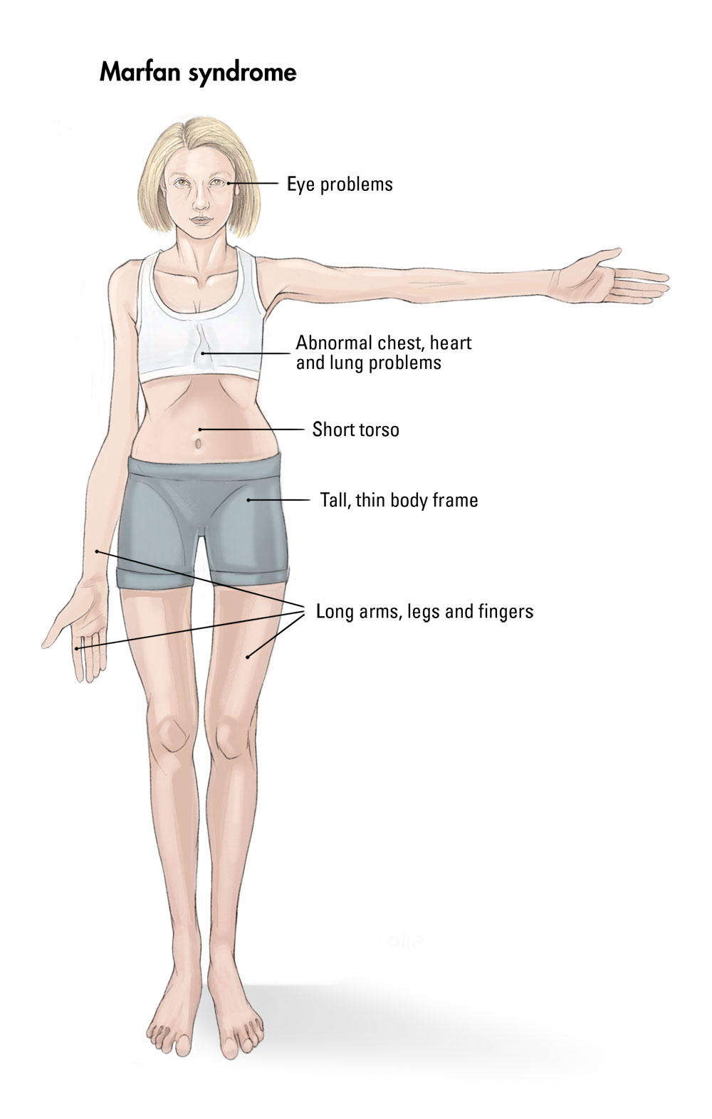 Human Biology Online Lab / Marfan syndrome