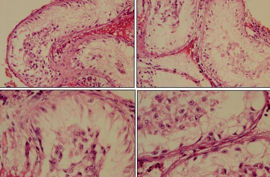 Histology of gonads from patient showing bilateral dysgenetic testis.