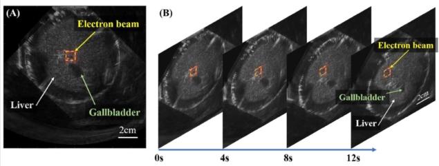 Dual-modality imaging