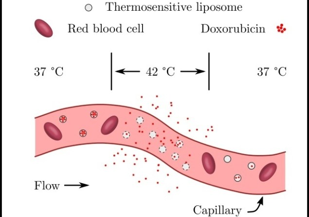Thermosensitive liposomes release encapsulated drugs when heated with focused ultrasound