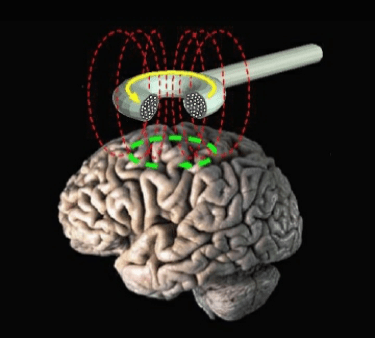 a schematic of the brain, showing the TMS device and the stimulation of the brain