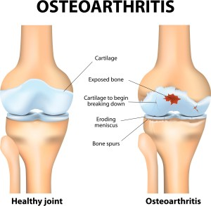 this picture shows a healthy knee with intact cartilage and compares it to an osteoarthritic knee with damaged cartilage, exposed bone and bone spurs.