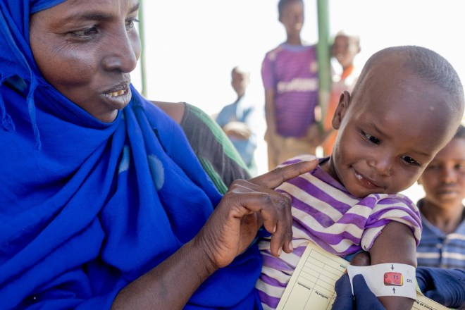 a child is at high risk for malnutrition in Somalia