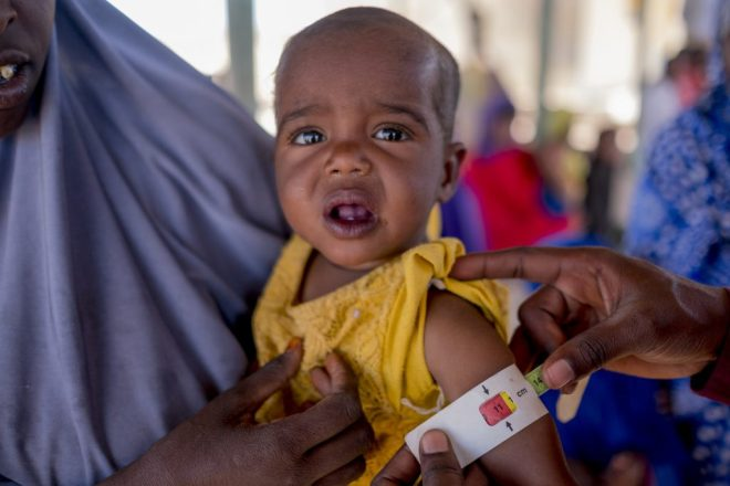 a baby girl who is malnourished in Somalia
