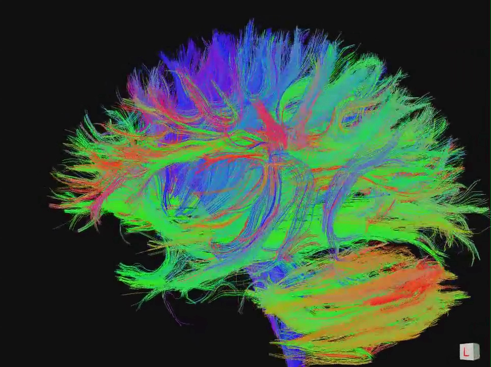 functional MRI of connections between neurons in human brain