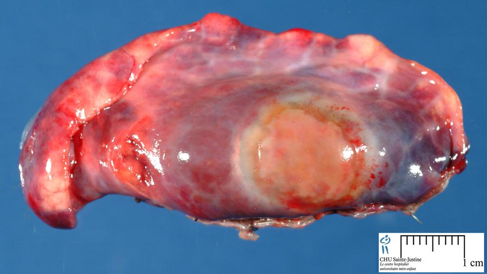 Subpleural Hematoma Humpath Com Human Pathology