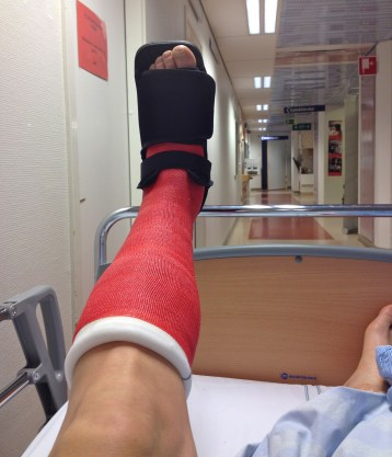 One leg with a very neat cast.