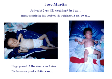 Jose Martin, One of the Many Children Who Benefited From the Nutritional Ward